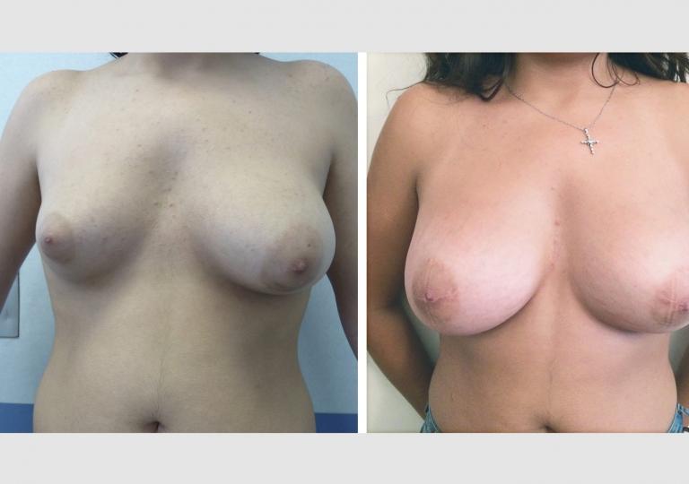 Asymétrie mammaire