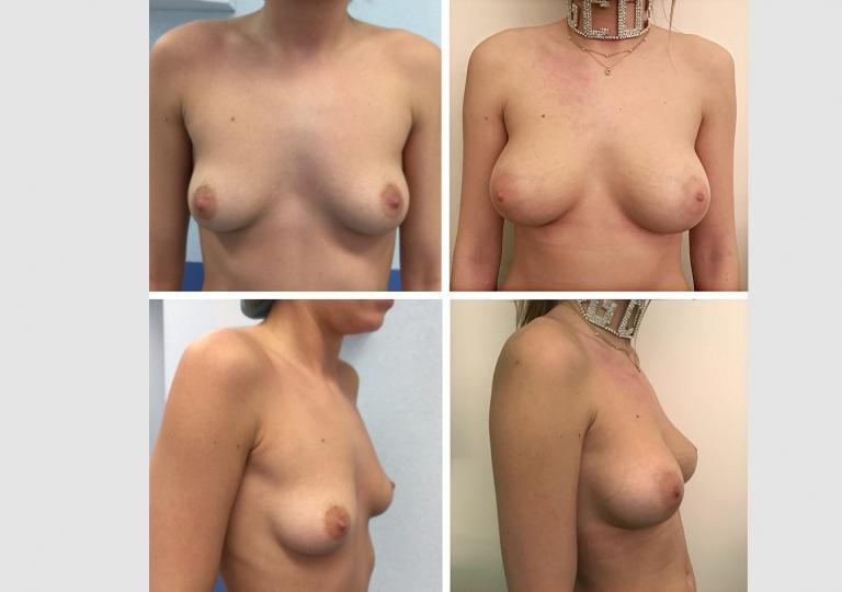 Augmentation mammaire 1